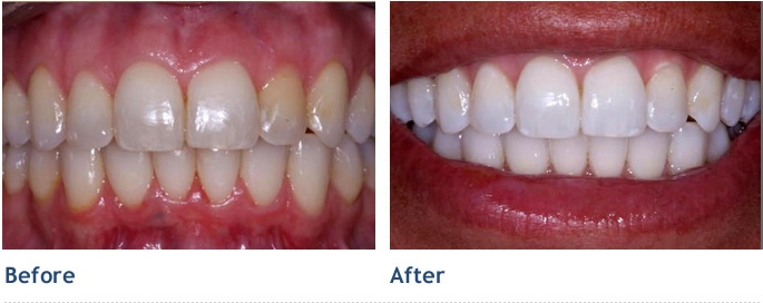 K 246 R Whitening Deep Bleaching System Dr Andrew Willoughby