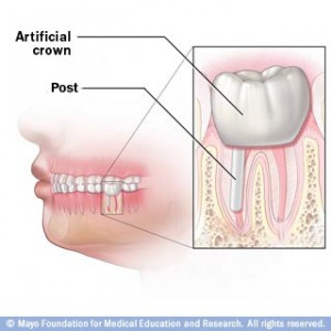 After Root Canal with Post and ceramic Crown bonded into place