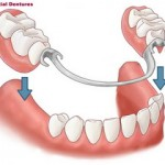 Partial denture with metal frame