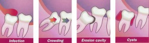 wisdom teeth types of impaction