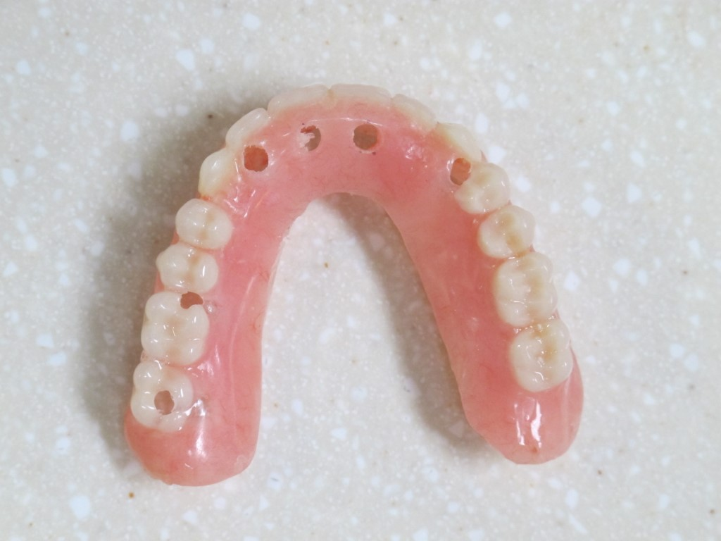 Tooth Borne Palate Less Over Dentures Utilizing Ceka