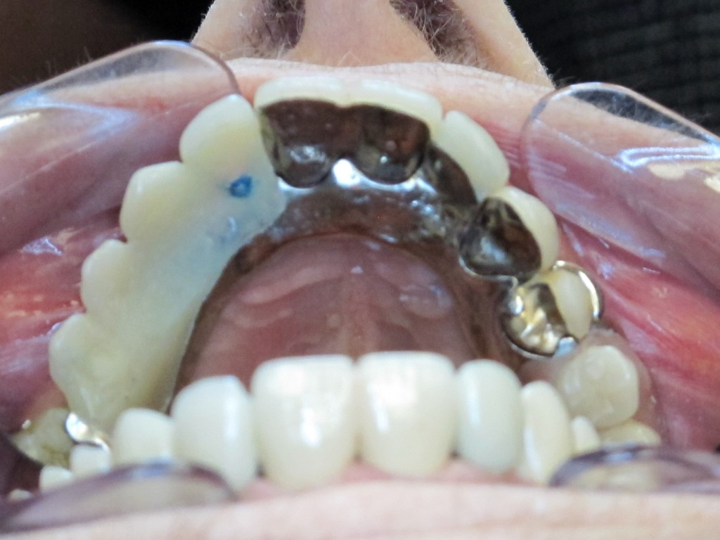 Precision Attachment Partial Dentures Dr Andrew Willoughby