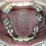 Different view of same upper teeth