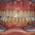 Upper teeth After (lower teeth in NM orthotic not completed)