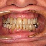 Upper teeth Before