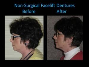 facelift dentures woman side